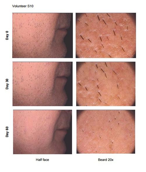 замедление роста волос с помощью изокенолиум лауреил бромид