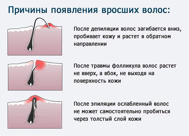 причины вросших волос после эпиляции